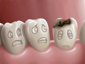 tooth-decay-treatment-types-and-how-to-prevent-it